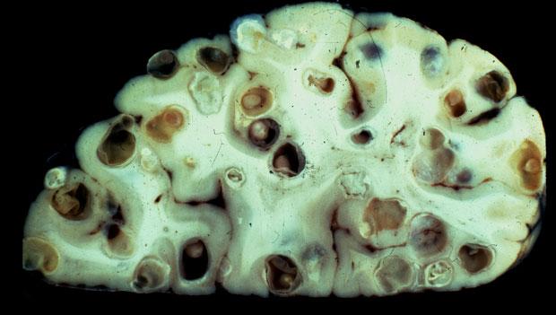 brainworms